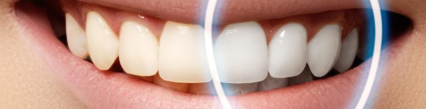 Dental bonding cost in Australia