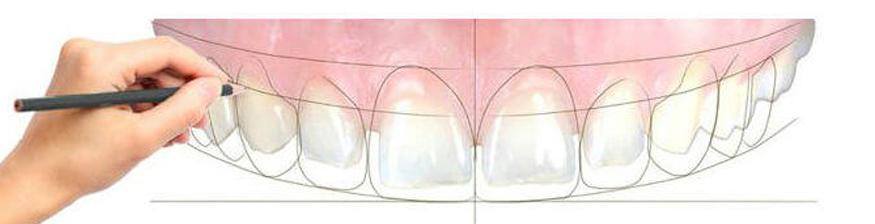 complete smile dental in hyderabad