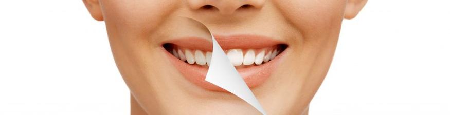 smile design dental