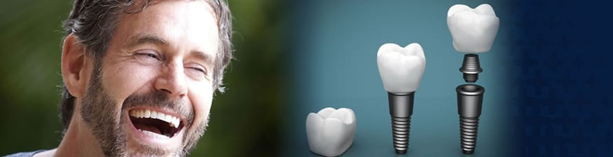 permanent teeth implants in India